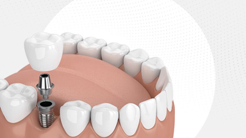 خطوات زراعة الأسنان