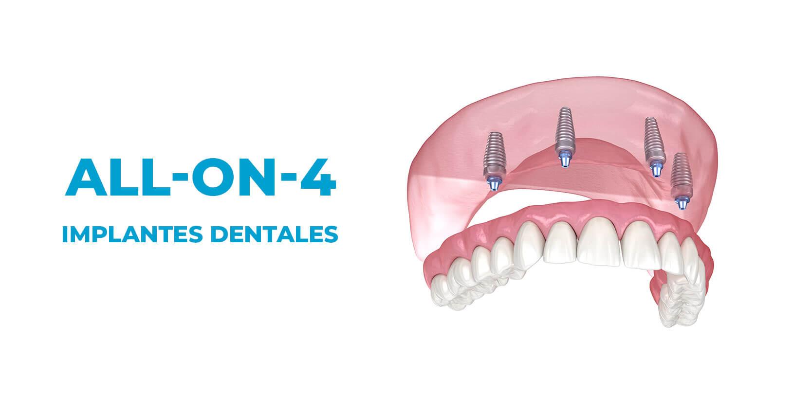 all on 4 blogn dentales