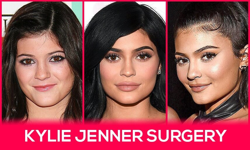 Kylie Jenner Surgery